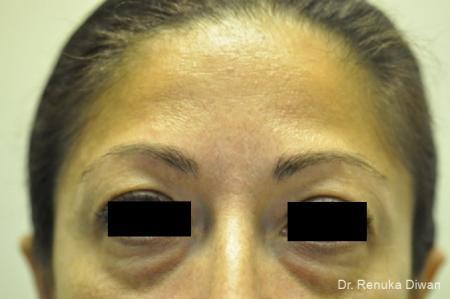 Dark Circles: Patient 18 - Before Image 1