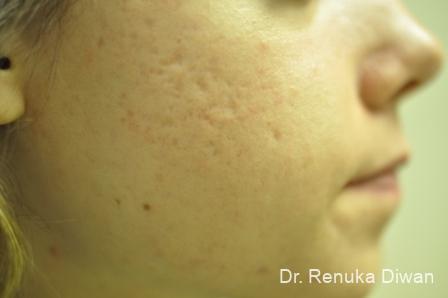 Laser Skin Resurfacing: Patient 4 - After Image 3