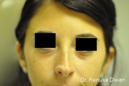 Dark Circles: Patient 4 - Before Image 1