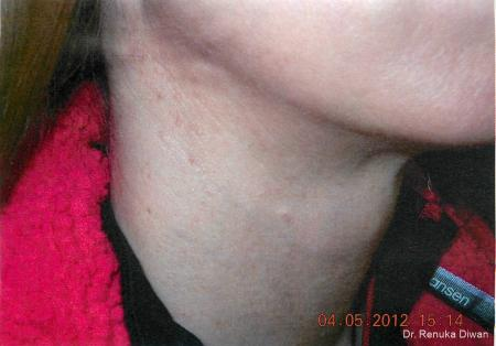 Neck Creases: Patient 4 - After Image