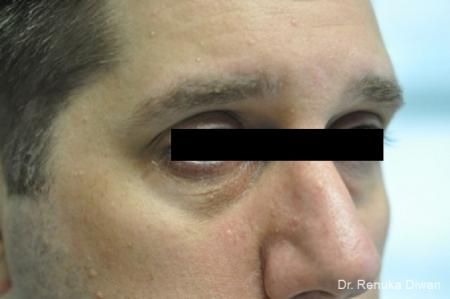 Dark Circles: Patient 1 - Before Image 2