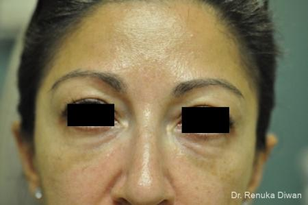 Dark Circles: Patient 18 - After Image 1