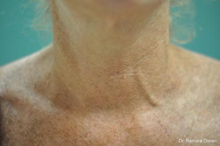 Skin Tightening: Patient 11 - After Image 1