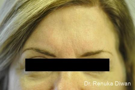 Dark Circles: Patient 22 - Before Image 1