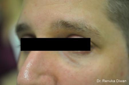 Dark Circles: Patient 1 - After Image 3