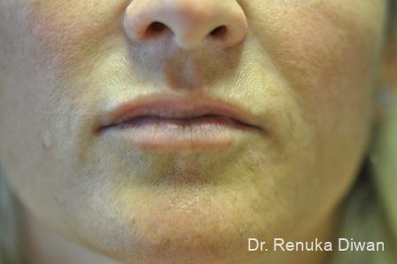 Lip Augmentation: Patient 14 - After Image 1