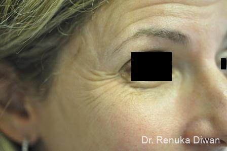 BOTOX® Cosmetic: Patient 20 - Before Image