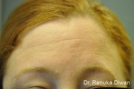 Forehead Creases: Patient 6 - Before Image