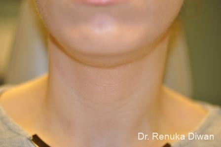 Kybella: Patient 2 - Before Image 1