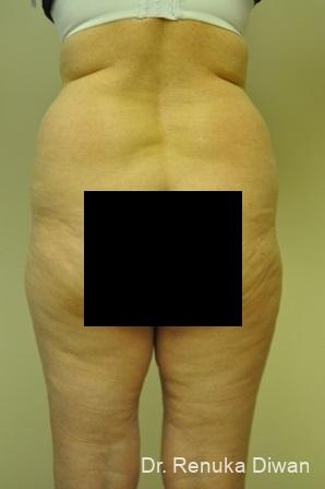 Liposuction: Patient 13 - Before Image 1
