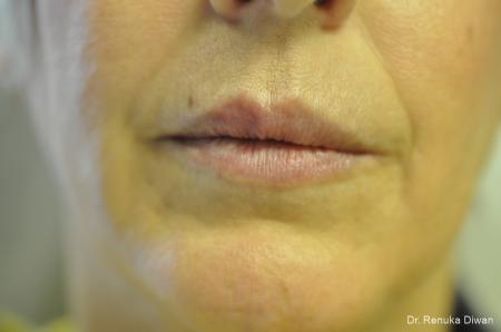 Lip Augmentation: Patient 16 - After Image 1