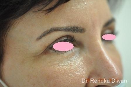 Blepharoplasty: Patient 2 - After Image 2