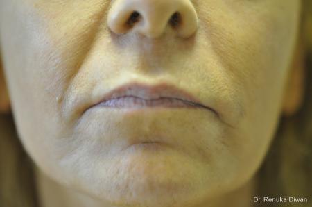 Marionette Lines: Patient 11 - Before Image 1