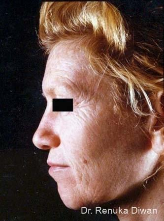 Chemical Peel: Patient 2 - Before Image