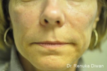 Smile Lines: Patient 2 - After Image 1