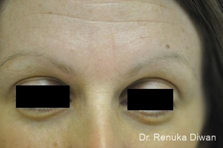 Frown Lines: Patient 9 - Before Image