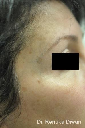 Lasers For Brown Spots: Patient 9 - Before Image 1