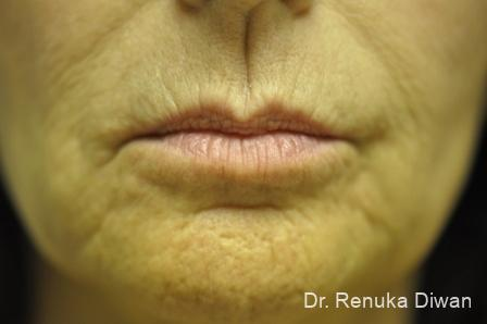 Lips And Mouth: Patient 13 - Before Image 1