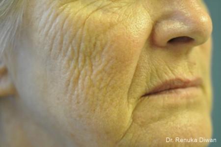 Laser Skin Resurfacing - Face: Patient 8 - Before Image 1