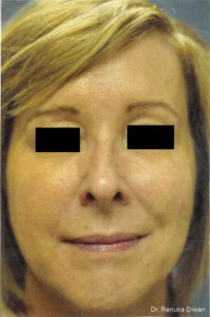 Loss Of Fullness: Patient 8 - After Image