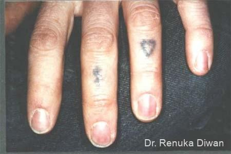 Tattoo Removal: Patient 2 - Before Image 1