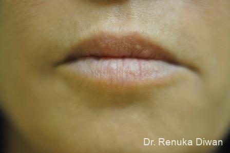 Lips And Mouth: Patient 2 - After Image