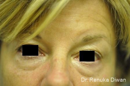 Dark Circles: Patient 12 - Before Image 1