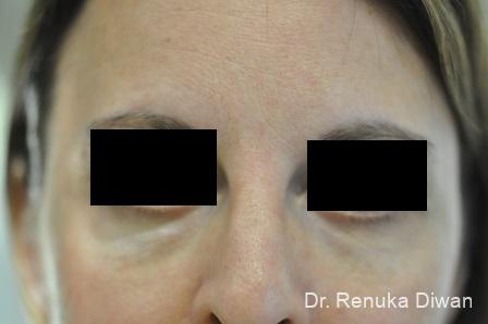 Dark Circles: Patient 14 - Before Image 1