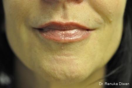 Lip Augmentation: Patient 6 - After Image 1