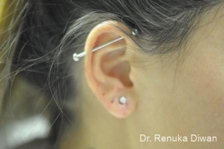 Earlobe Surgery: Patient 6 - After Image 2
