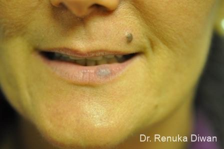 Laser For Veins And Redness: Patient 22 - Before Image 1