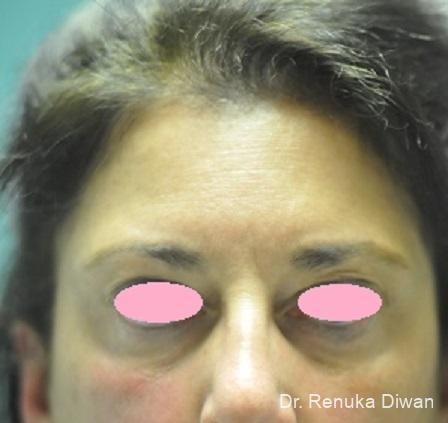 Dark Circles: Patient 24 - Before Image 1
