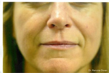 Smile Lines: Patient 7 - Before Image