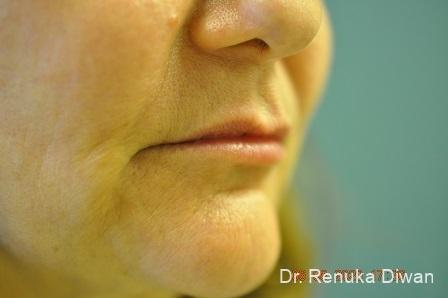 Lips And Mouth: Patient 16 - After Image 1