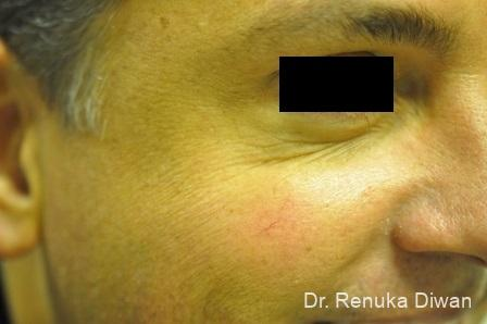Crows Feet Creases: Patient 6 - After Image 1