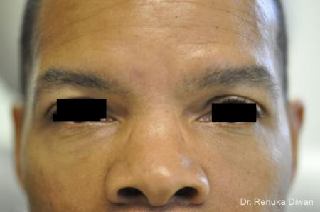 Dark Circles: Patient 3 - After Image