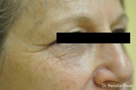 Microneedling: Patient 1 - After Image 2