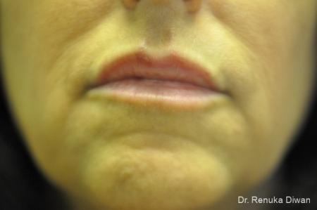 Lip Augmentation: Patient 9 - After Image