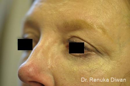 Blepharoplasty: Patient 9 - Before and After Image 2