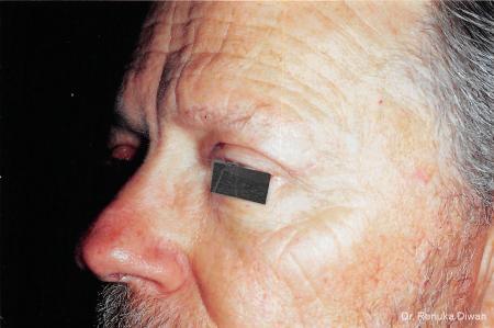 Blepharoplasty-for-men: Patient 3 - After Image