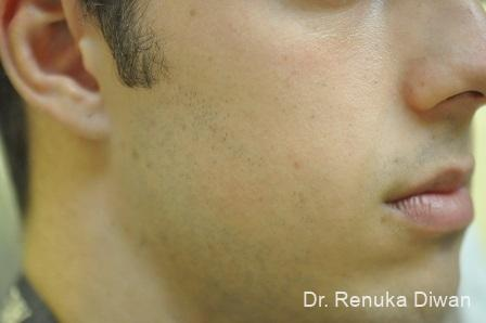 Lasers For Brown Spots: Patient 13 - After Image 1