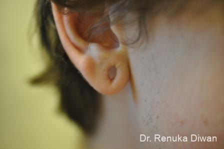 Earlobe Surgery: Patient 8 - Before Image 1