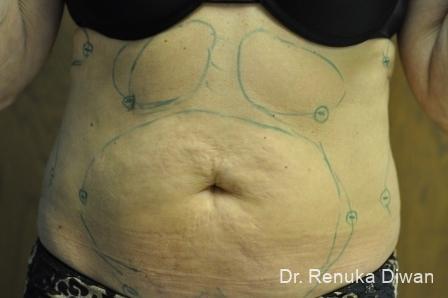 Liposuction: Patient 15 - Before Image 1