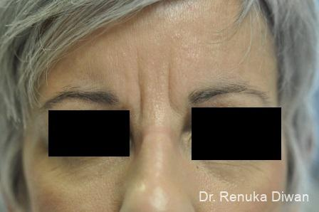 BOTOX® Cosmetic: Patient 4 - Before Image