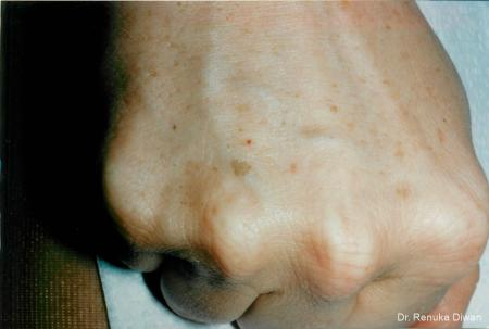 Lasers For Brown Spots: Patient 3 - Before Image