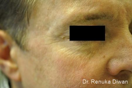 Botox Cosmetic For Men: Patient 4 - Before Image 1