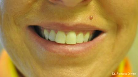 BOTOX® Cosmetic: Patient 32 - After Image 1