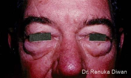 Blepharoplasty-for-men: Patient 1 - Before Image