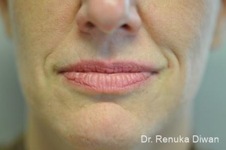 Smile Lines: Patient 1 - Before Image