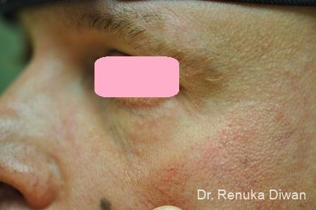 Laser For Veins And Redness: Patient 15 - After Image 1